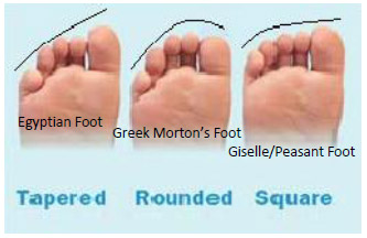 Figure 2. This displays the different foot shapes. It compares toe length with foot width.